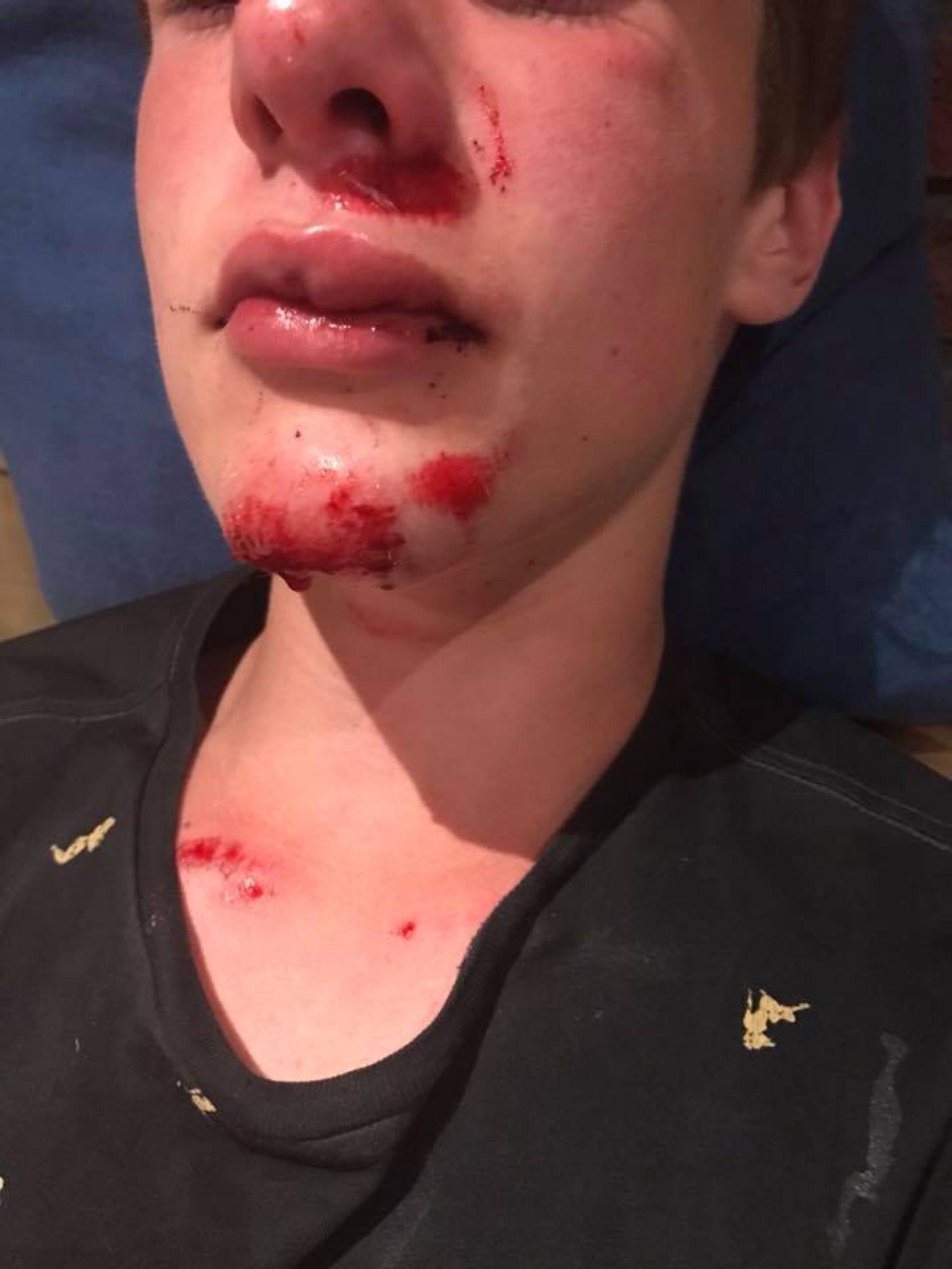 Fietser (15) aangereden tussen Delden en Borne – Bestuurder rijdt door